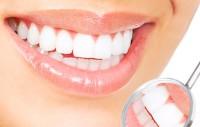 как избавиться от налета на зубах
